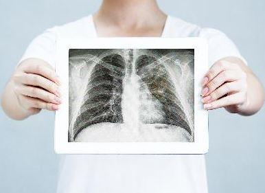 폐암 진료 잘하는 병원은 어디?</br>89개 기관 중 80곳 1등급