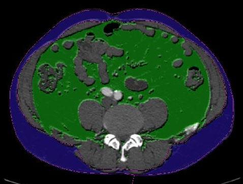 CT로 찍은 복부 내장지방 사진. 초록색으로 표시된 부분이 지방이다.