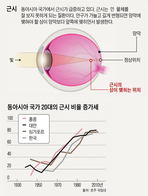 동아시아 국가 20대의 근시 비율 증가세 그래프
