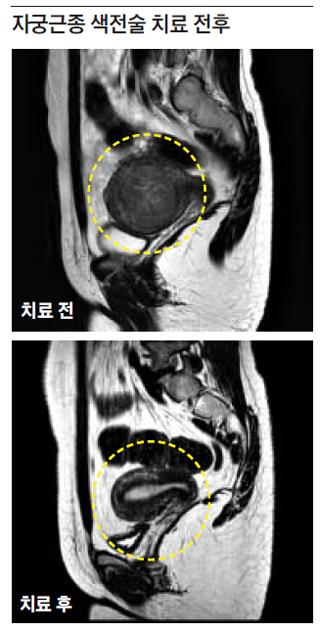 자궁근종 색전술 치료 전후