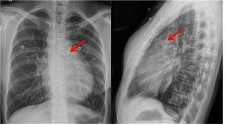 인공심장판막이 폐동맥판막 부위에 이식된 사진/서울대병원 제공