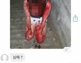 부산 사상구에서 폭행당한 여중생이 피투성이가 된 사진을 가해자 여중생이 지인의 소셜미디어 대화방에 전송하고 '(보기에) 심해?'라고 묻고 있다.