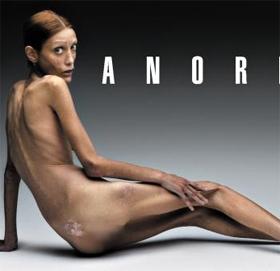 거식증으로 숨졌던 프랑스 모델 - 프랑스의 모델 이사벨 카로가 자신이 앓고 있던 거식증에 대한 경각심을 일깨우기 위해 2007년 밀라노 패션 주간에 맞춰 공개한 나체 사진. 그는 3년 뒤 숨졌다.