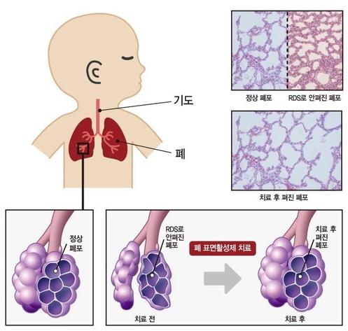 폐 표면활성제 치료 이미지 / 강동경희대병원 제공