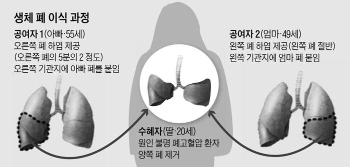 생체 폐 이식 과정