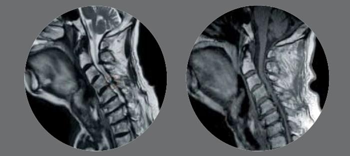 양방향 척추내시경 신경감압술 시행 후 눌려 있던 신경이 풀린 모습. 시술 전(좌)과 시술 후(우)
