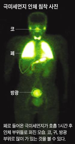 극미세먼지 인체 침착 사진