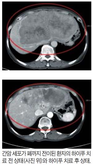 전이성 간암, 절제 수술 불가능할 경우 '하이푸 시술' 주목