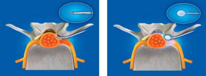 척추관협착증 환자 모형에서 추간공성형술키트(FORAMOON™) 시술 모형. 의료기구로 비대한 황 인대를 뜯어내는 그림(왼쪽)과 풍선 카테터로 유착을 박리하고 치료약제를 주입해 신경부종을 치료하는 그림