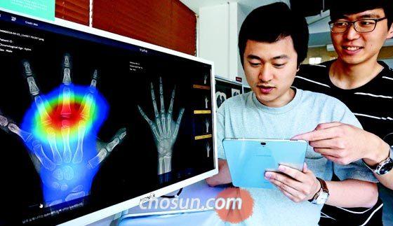 지난 25일 서울 강남구 역삼동에 있는 의료기기 스타트업 뷰노 본사에서 직원들이 인공지능 기술로 엑스레이 화면 속 뼈 나이를 분석하고 있다. /