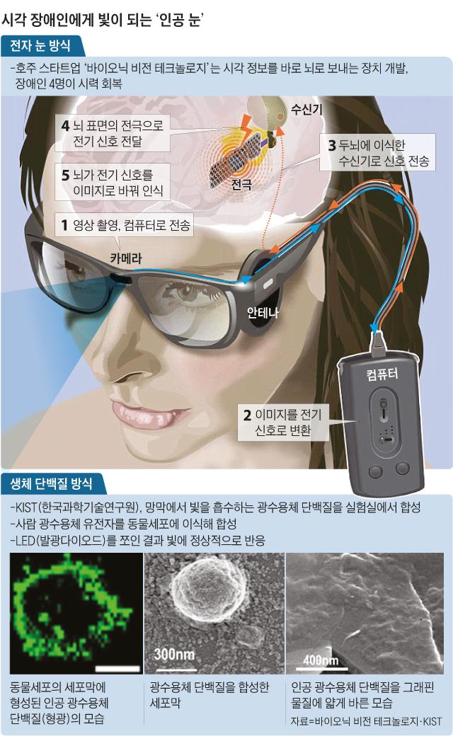 시각 장애인에게 빛이 되는 인공 눈 그래픽