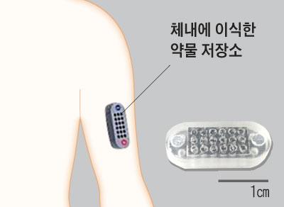 체내에 이식한 약물 저장소 그래픽