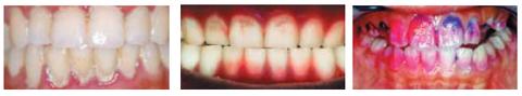 충치(치아우식)와 잇몸병(치주질환)의 주범, 치면세균막(치태) / 형광 검사로 치면세균막 관찰. / 치면세균막 착색.