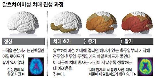 조선일보DB