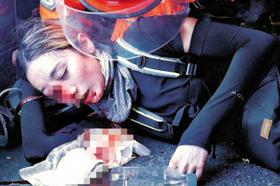 홍콩 침사추이 경찰서 인근에서 11일 시위를 벌이다 경찰이 쏜 빈백탄에 맞아 쓰러진 여성이 오른쪽 눈에서 피를 흘리고 있다.