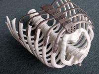 3D 프린터로 만든 가슴뼈, 국내 첫 이식 성공