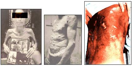 고엽제로 인한 여러 후유증 /사진=대한민국고엽제전우회