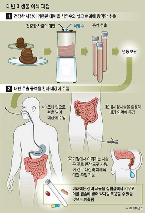 대변 미생물 이식 과정 그래픽