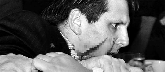 깊이 3㎝, 길이 11㎝ 刺傷 5일 오전 7시 38분 서울 종로구 세종문화회관에서 열린 조찬 강연에서 김기종씨가 휘두른 칼에 얼굴 부상을 입고 쓰러졌던 마크 리퍼트 주한 미국 대사가 주위 사람들의 도움을 받아 일어서고 있다. 리퍼트 대사의 뺨에 길이 11㎝, 깊이 3㎝의 자상이 선명하다(사진은 흑백 모자이크 처리). 리퍼트 대사는 80여 바늘을 꿰매는 수술을 받았다.