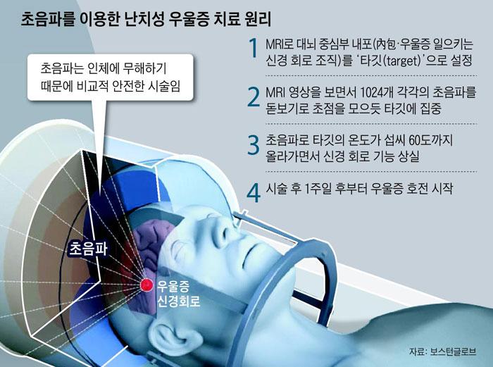 초음파를 이용한 난치성 우울증 치료 원리