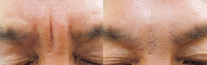 깊은 미간 주름을 펴기 위해 자가진피재생술을 받은 환자의 시술 전과 후.