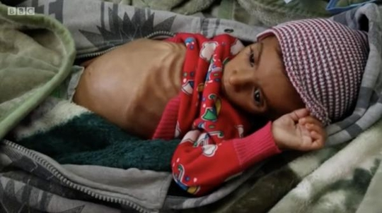 국제 구호 기구 '세이브더칠드런'은 2018년 11월 21일 예멘에서 8만5000명의 영유아들이 기아로 사망했다고 발표했다. /BBC