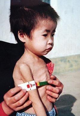 영양실조에 걸린 북한 어린이가 건강 테스트를 받는 모습. /유니세프