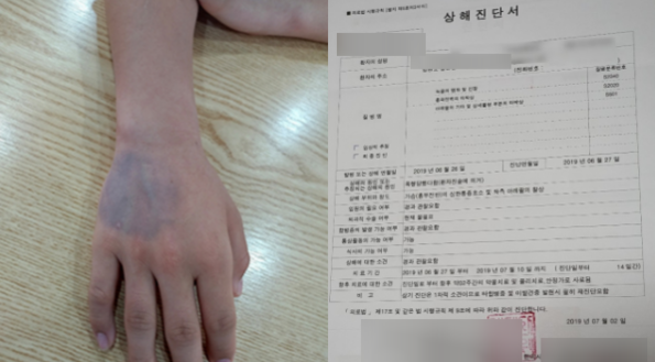 지난 6월 중학교 3학년생 7명에게 집단폭행을 당한 김모(14)군의 손과 전치 2주 상해진단서./박씨 제공