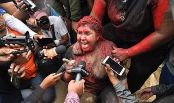 공격당한 볼리비아 빈토의 아르체 시장 /EPA 연합뉴스