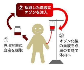 후쿠오카현의 한 정형외과 의원 홈페이지에 실린 혈 액클렌징 요법 소개. /해당 의원 홈페이지 캡처=연합뉴스