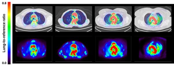 대식세포의 침윤을 포함한 비정상 염증반응은 폐동맥 고혈압의 주요 기전 중 하나이다. 대식세포 침윤이 많아지면 Ga-NOTA-MSA의 발현이 커진다. 그림처럼 대식세포 침윤정도를 색깔로 표시할 수 있어 발병여부나 진행정도를 쉽게 파악할 수 있다./서울대병원 제공