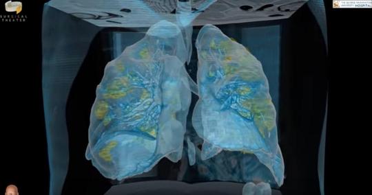 코로나19 확진자의 폐 모습을 VR로 구현한 영상. /유튜브 캡처