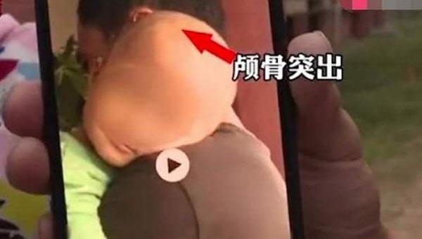 중국 후난성에서 발생한 가짜 분유 파동의 피해 아동 모습/신징바오