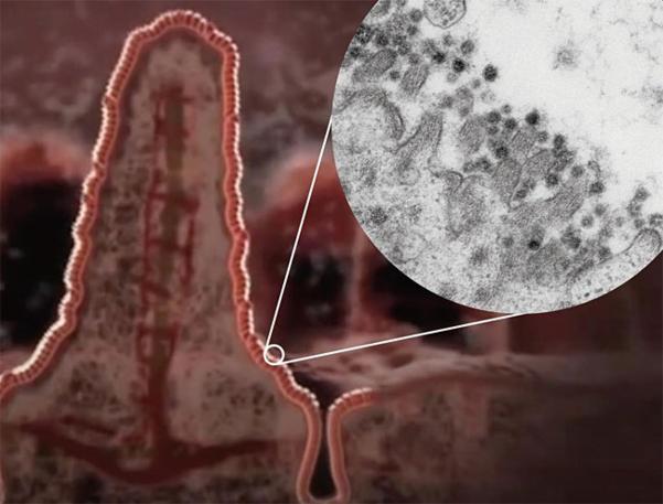 과학자들은 코로나19 바이러스가 장으로도 침투할 수 있다고 경고한다. 사진은 장에 코로나19 바이러스(검은 점)가 붙어 있는 모습./ 마스트리흐트대
