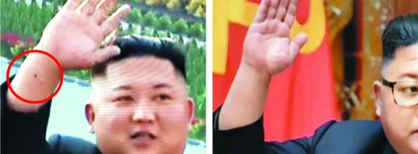 20일 만인 지난 2일 보도로 등장한 김정은의 오른쪽 손목 아래에 전에 없던 동그란 흉터(빨간 원)가 있는 모습.(왼쪽 사진). 의료 전문가들은 손목의 요골동맥을 통한 심혈관 조영술을 하면서 생긴 흉터일 가능성이 있다고 지적했다. 지난 4월 11일엔 흉터가 없었다(오른쪽). /TV조선
