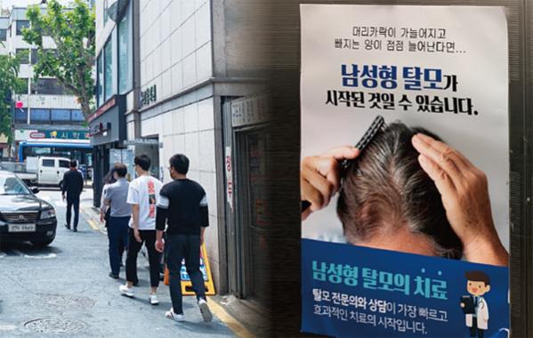탈모 치료제 '프로페시아', 우울증 원인 논란 남성 대머리